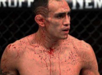แกธเจ ชนะ TKO เฟอร์กูสัน ศึก UFC 249